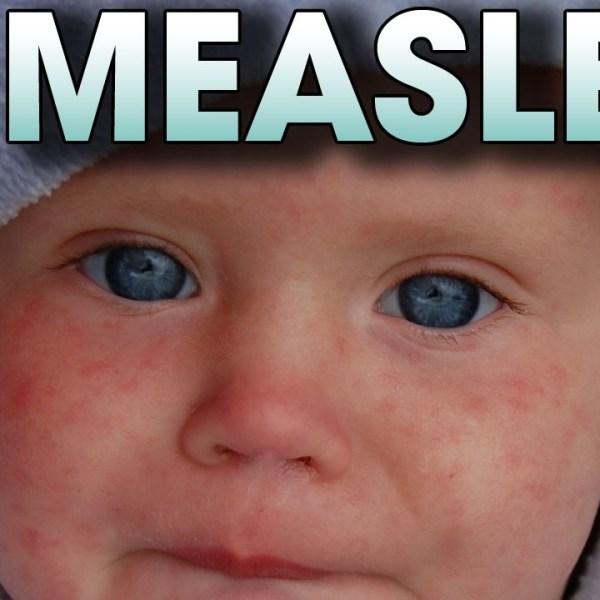 Measles_14488
