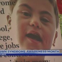 This Morning: Down Syndrome Month